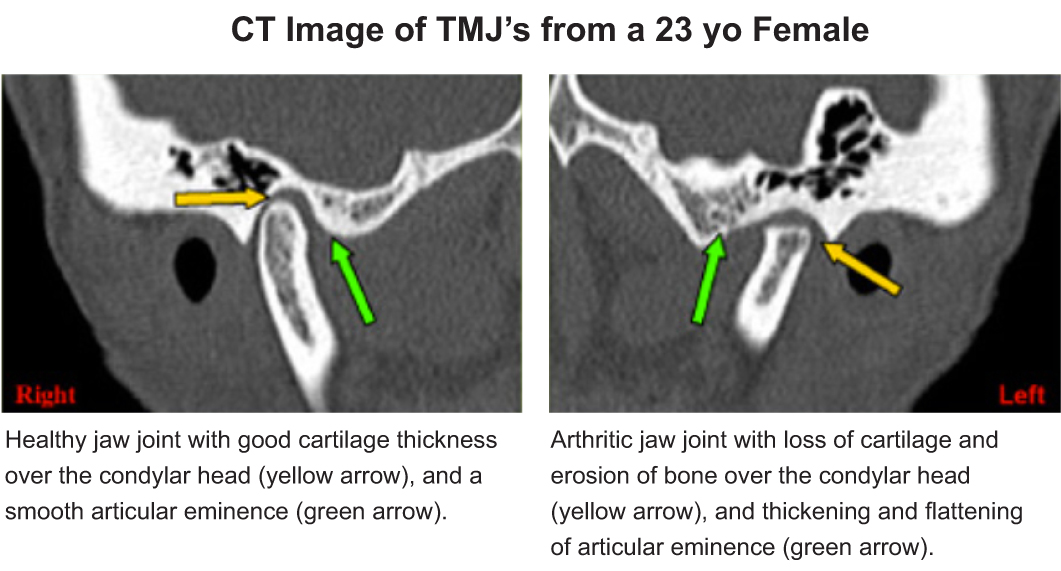 CT-Image-of-TMJ