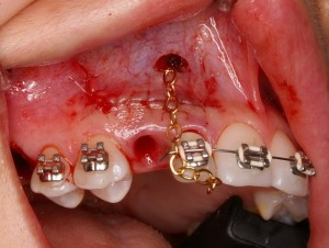 Oral surgery orthodontic canine exposure extraction