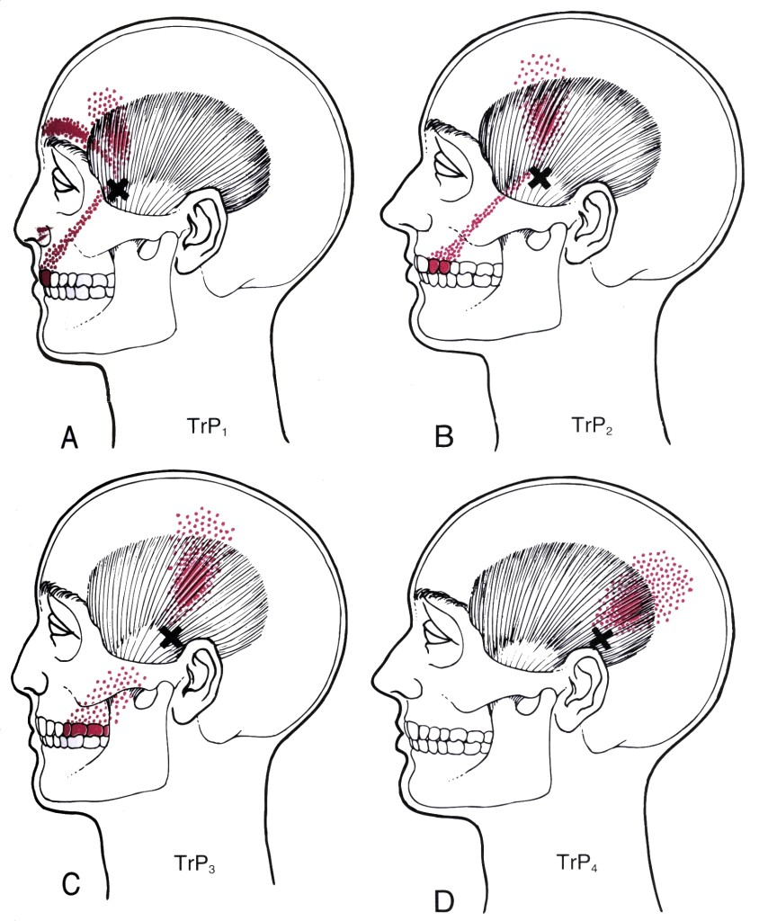 trigger points bruxism tmj pain