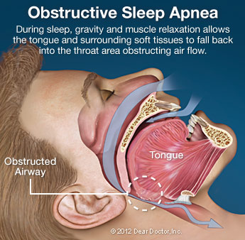snoring sleep apnoea headaches bruxism tmj