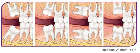 Hobart Orofacial Pain and Special Needs Clinic Impacted wisdom teeth oral surgery extractions