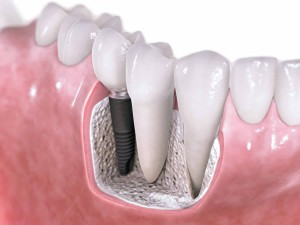 Implant Tooth replacement oral surgery