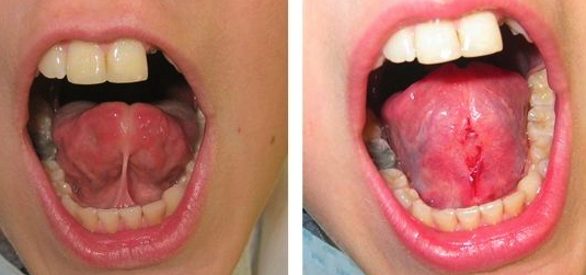 Tongue tie oral surgery