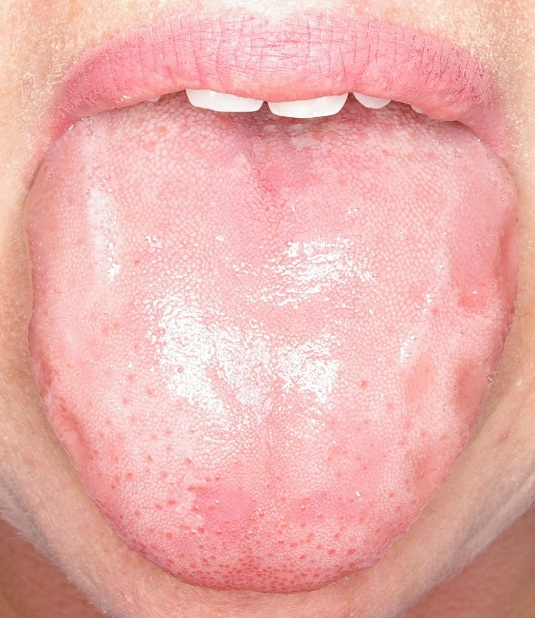 Oral yeast infection in adults