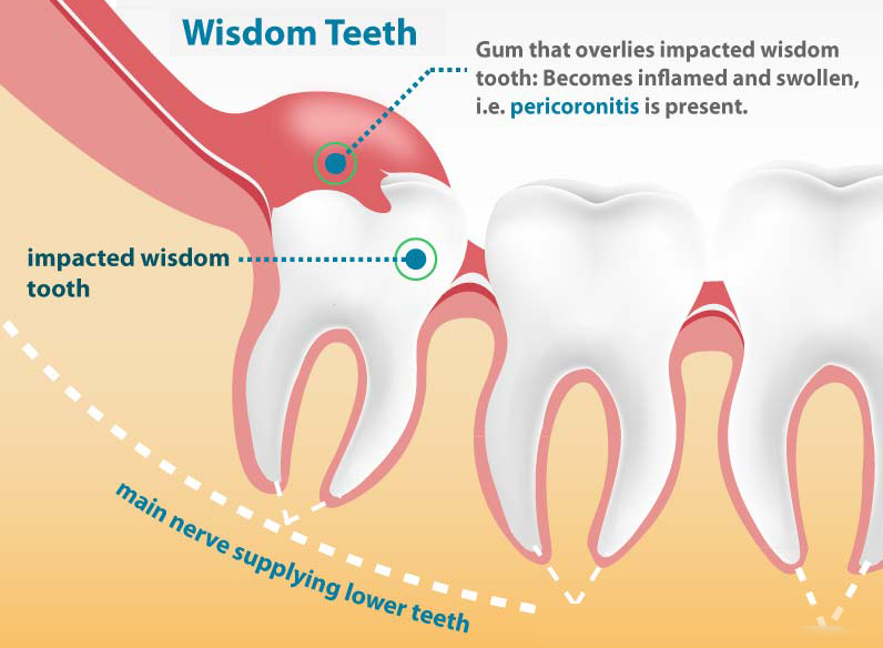 Hobart Orofacial Pain and Special Needs Clinic Wisdom Teeth Pain Cause - Pericoronitis